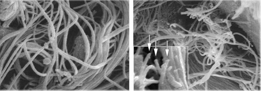Normal collagen bundles (left) versus diabetic collagen bundles which are disorganized and nicked (right)
