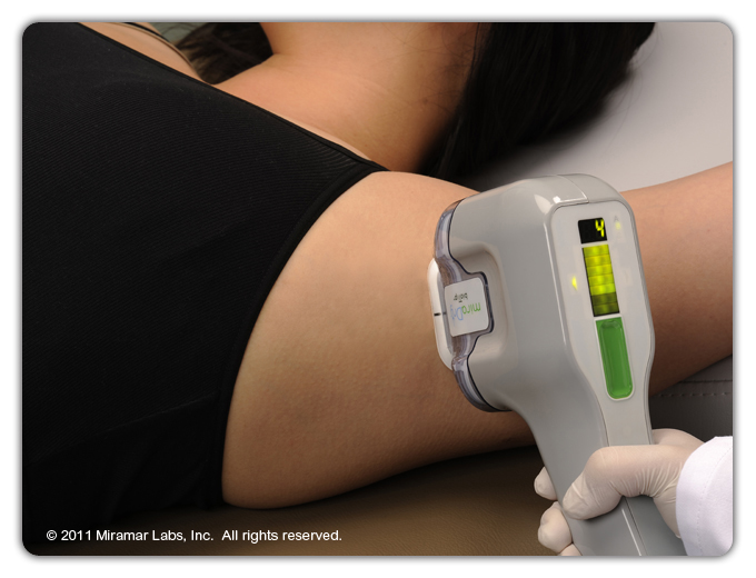miraDry procedure uses a light handheld device that is placed directly on the skin and moved across the entire area, one pulse at a time